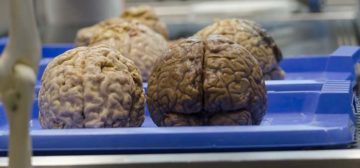 Human brains waiting to be examined.